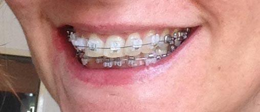 Zahnspange Erwachsene